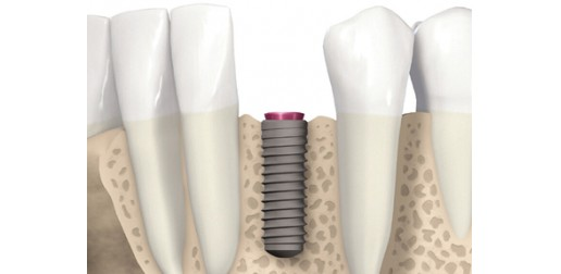 Remplacement de dents manquantes - Implants dentaires